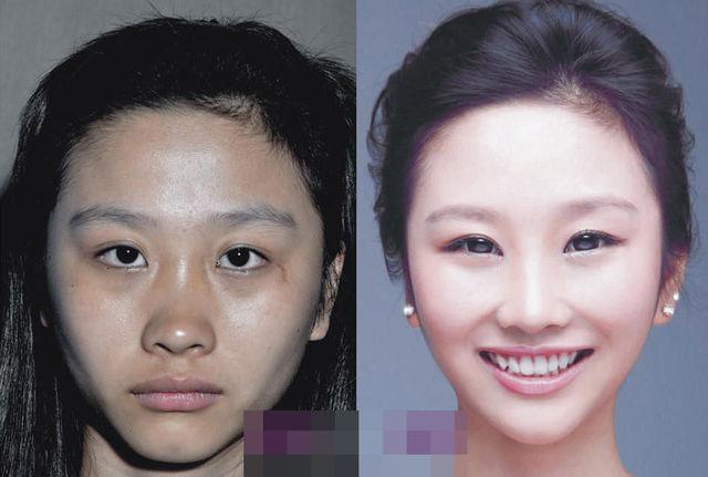 chirurgie-plastique-chine-14