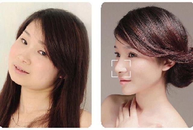 chirurgie-plastique-chine-15