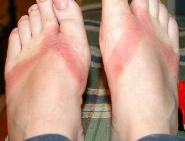 pieds-brules-sandales-chimiques-02