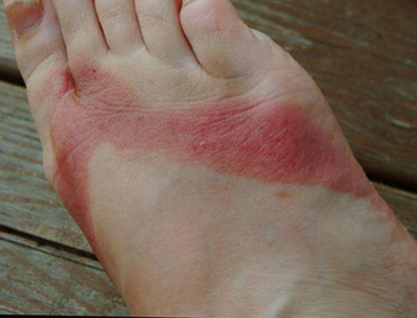 pieds-brules-sandales-chimiques-04