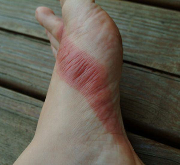pieds-brules-sandales-chimiques-05