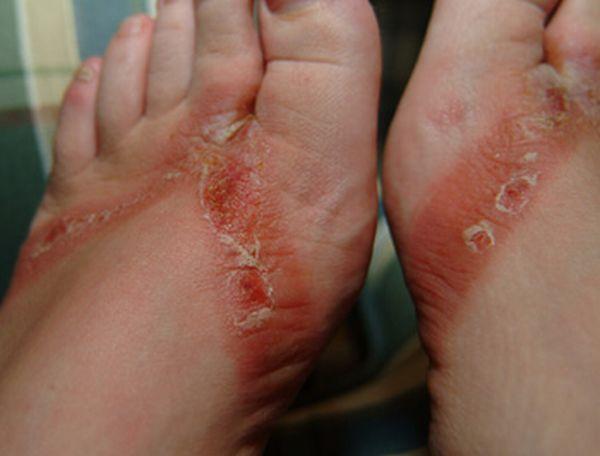 pieds-brules-sandales-chimiques-08
