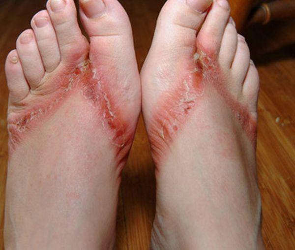pieds-brules-sandales-chimiques-10