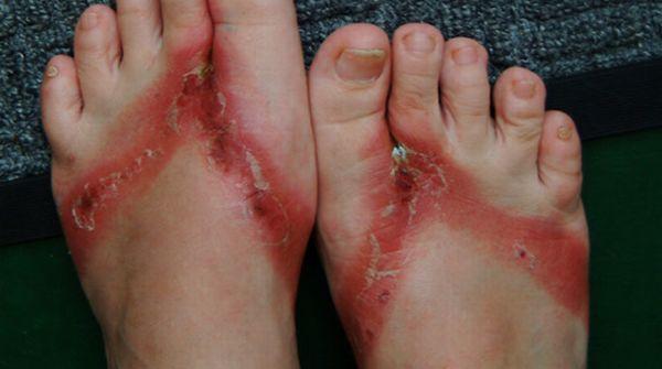 pieds-brules-sandales-chimiques-12