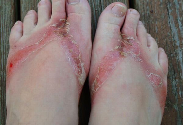 pieds-brules-sandales-chimiques-13