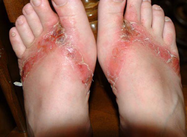 pieds-brules-sandales-chimiques-14