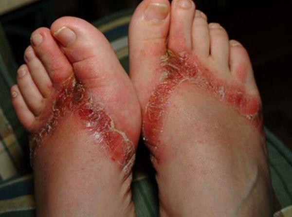 pieds-brules-sandales-chimiques-17