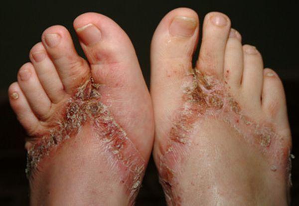 pieds-brules-sandales-chimiques-18
