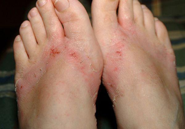 pieds-brules-sandales-chimiques-20