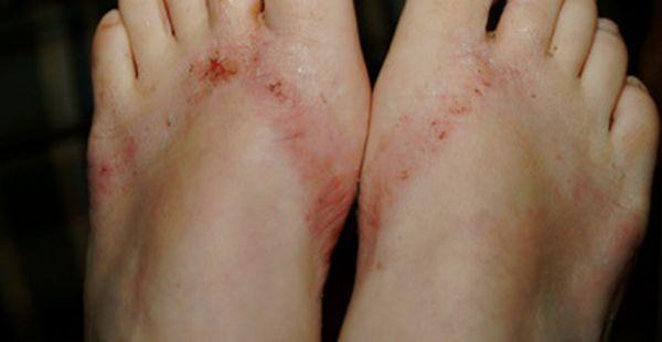 pieds-brules-sandales-chimiques-21