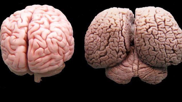cerveau-humain-cerveau-dauphin