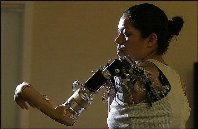 bras-bionique