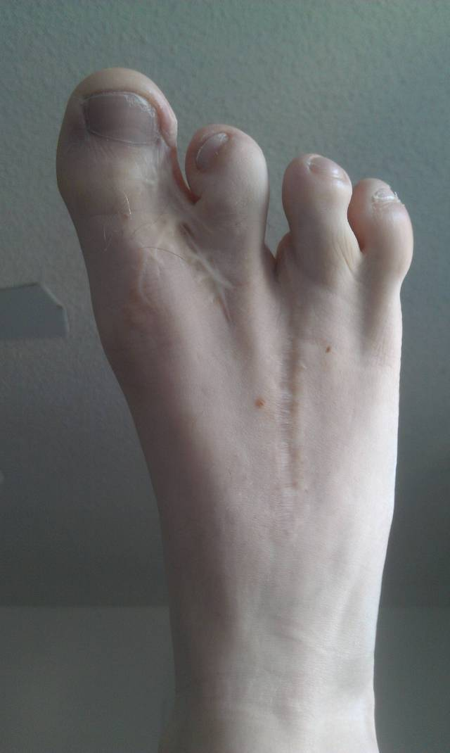4-doigts-pieds-colles