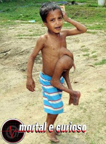 enfant-pieds-ventre