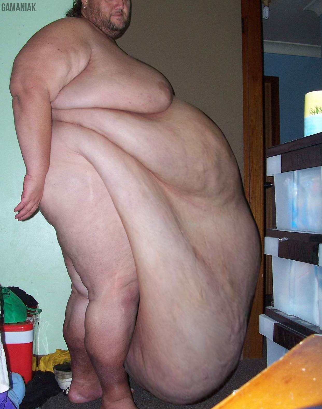 Homme obèse avec le ventre qui pendouille
